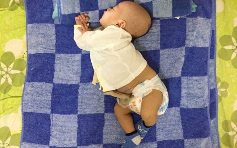 生後10日で2度の手術を乗り越えた息子の話
